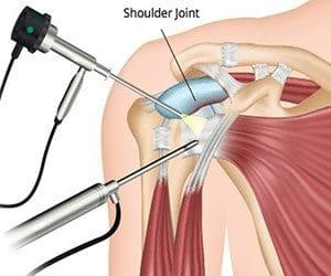 artroskopska operacija ramena