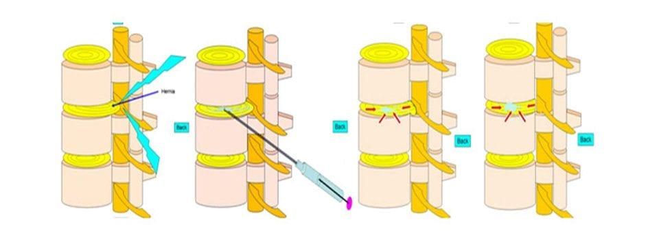 Neoperacijsko liječenje hernije diska