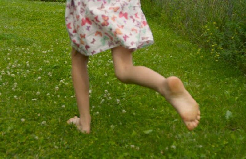 ravna stopala